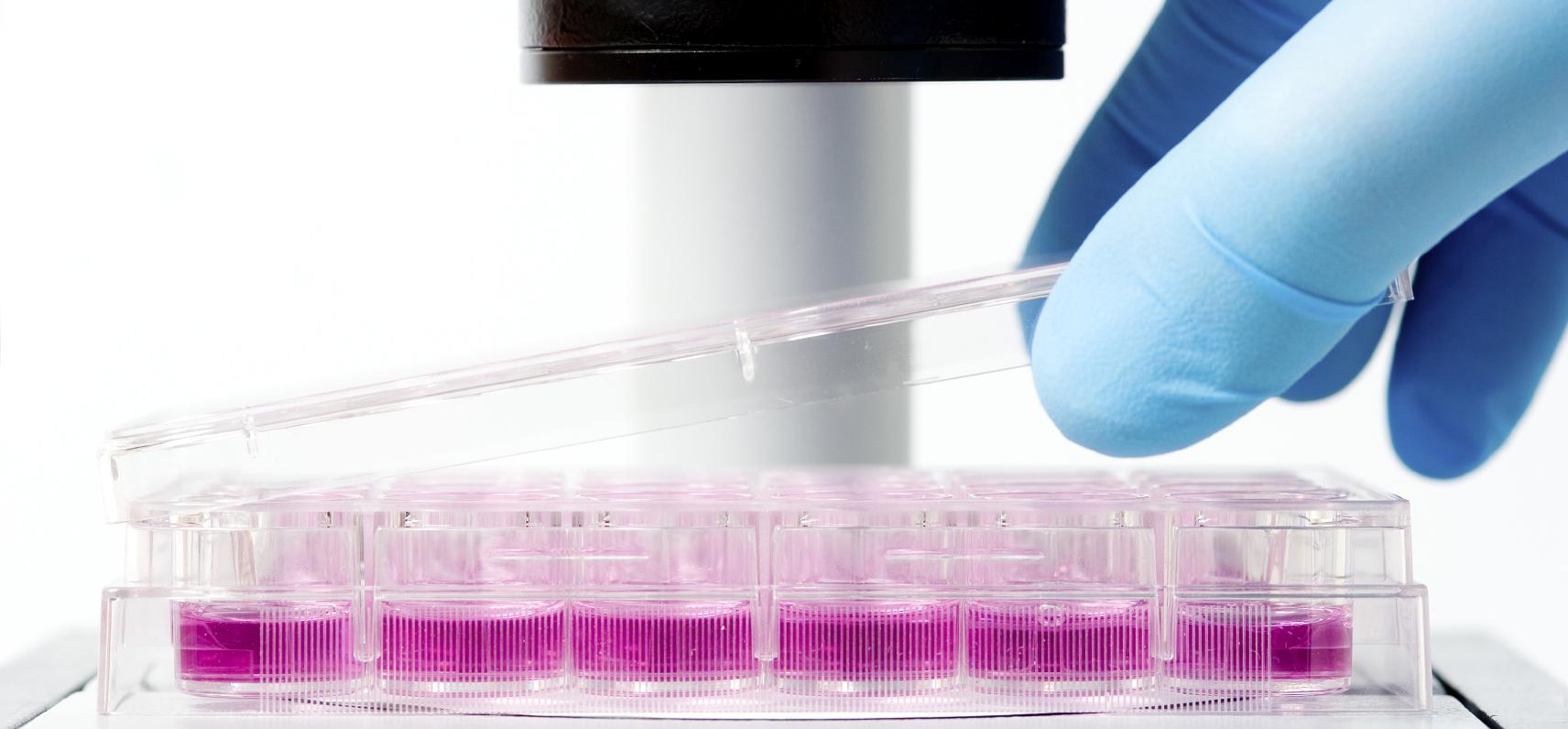 Laboratorio de análisis de citología vaginal